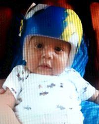 Photo of Noe Medina Jr., an infant wearing a helmet.