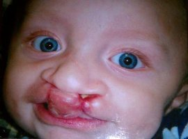 Photo of Julian Adams-Lacas, an infant with a cleft lip.
