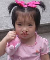 Photo of Lavender Banks, a little girl in a pink dress and pink hair ribbons. She has a cleft lip.