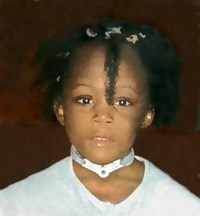 Photo of Marchella Brett-Pierce, a girl with her hair in messy pigtails. Around her neck is a tracheotomy collar.